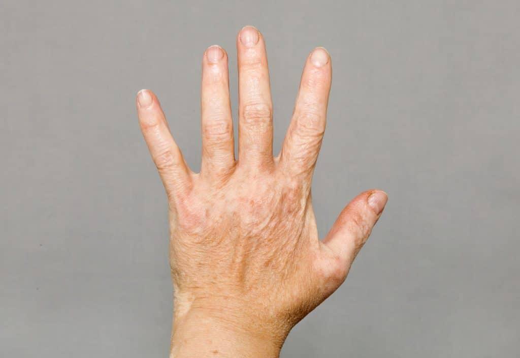 Vitiligo in Hands