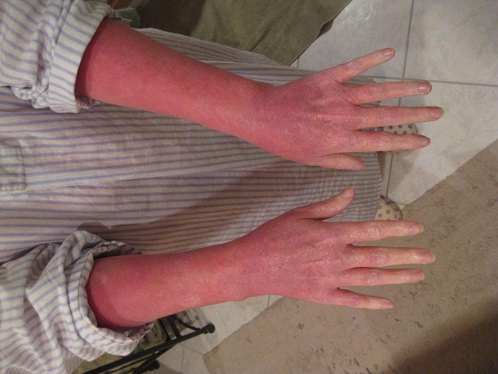 arms sunburned, skin burn