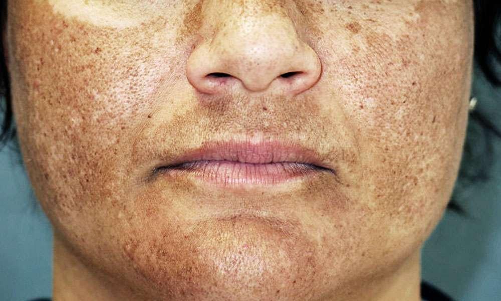 hiperpigmentation - melasma